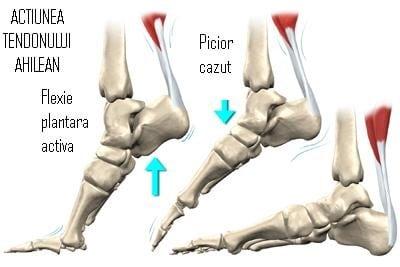 Ruperea tendonului lui Ahile: simptome, tratament și consecințe ale leziunii - Artrită