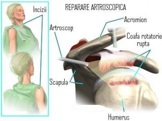 Tratament chirurgical leziune de coafa rotatorie