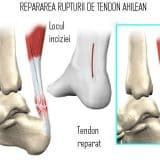 Tratamentul rupturii de tendon ahilean