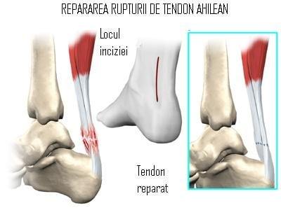 pierde grăsime în jurul lui ahile tendon