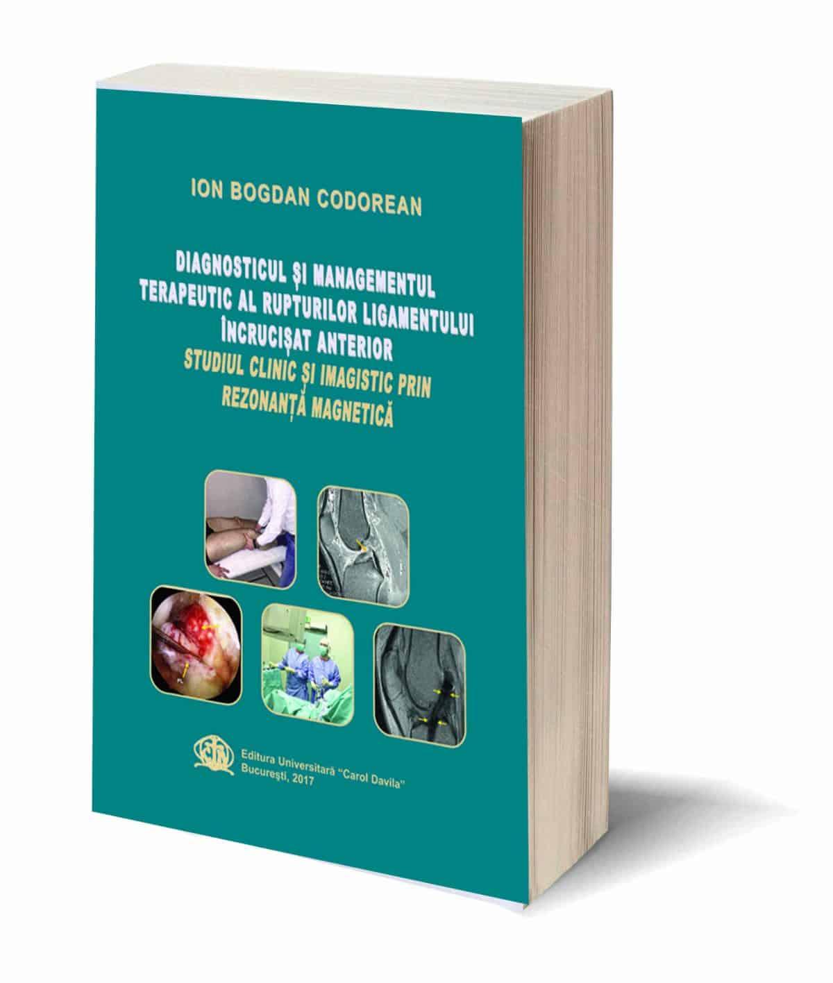Diagnosticul-si-managementul-terapeutic-al-rupturilor-ligamentului-incrucisat-anterior-Studiu-clinic-si-imagistic-prin-rezonanta-magnetica-1200x1416.jpg