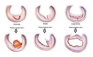 Cauzele rupturii de menisc și tipurile de leziuni asociate
