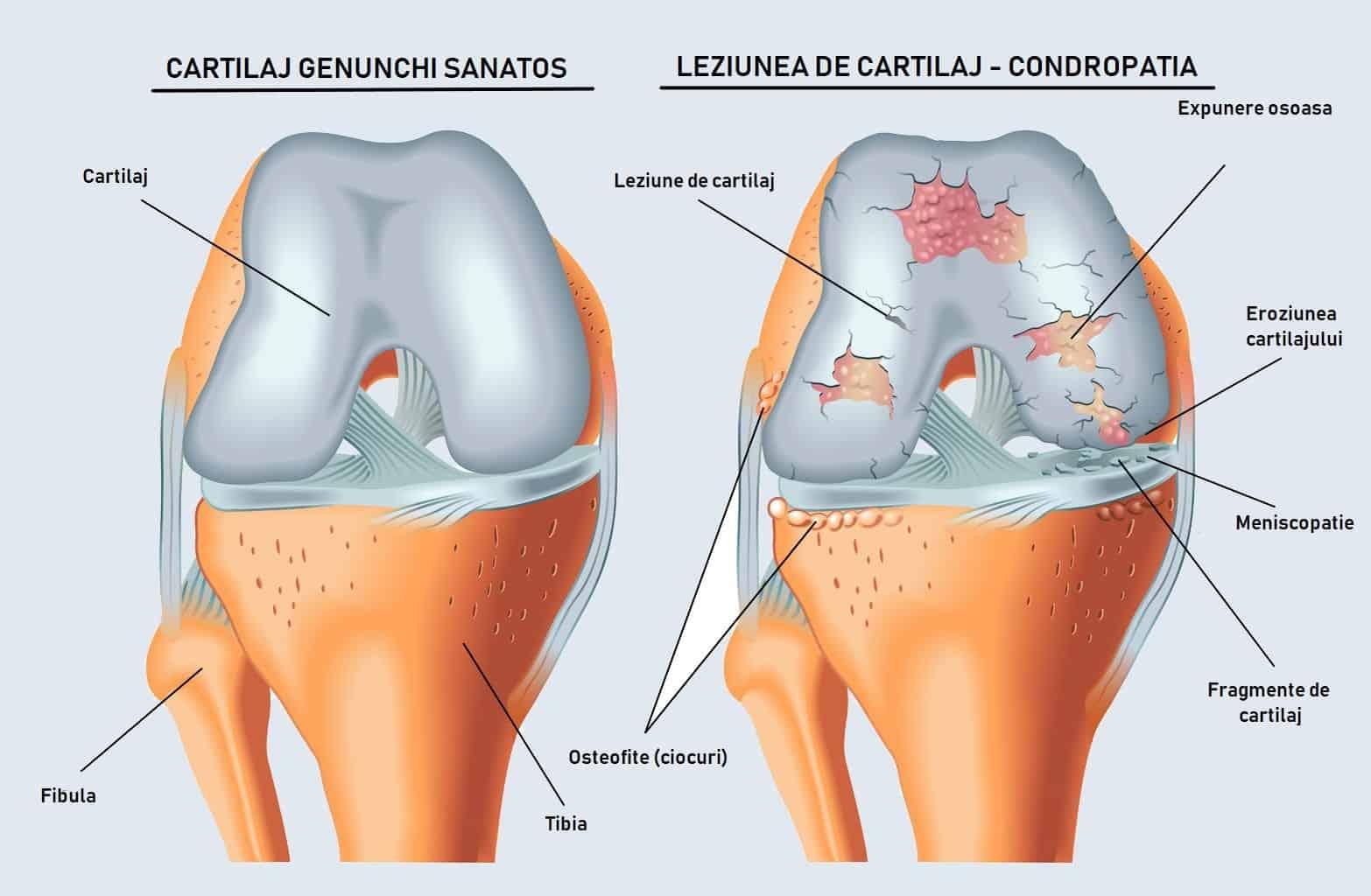 tratamentul hemoragiei articulare cremă pentru articulații amrit arnizină